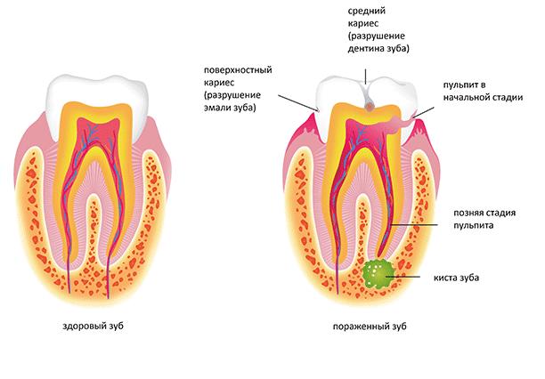 Как лечить кисту зуба в домашних условиях?
