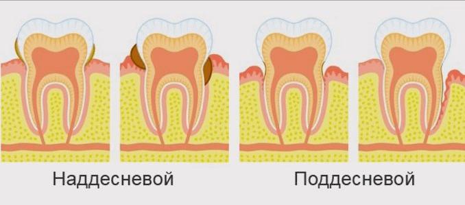 Лечение зубного камня в домашних условиях