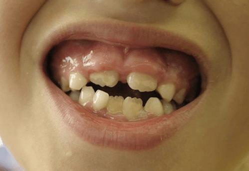 Способы лечения гингивита в домашних условиях