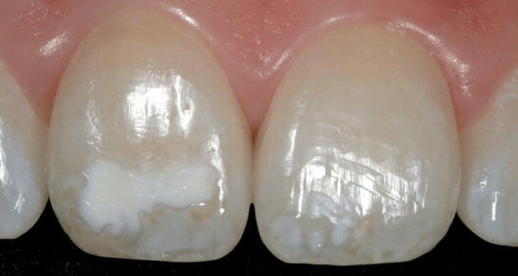 Почему на зубах появляются белые пятна и как от них избавиться?