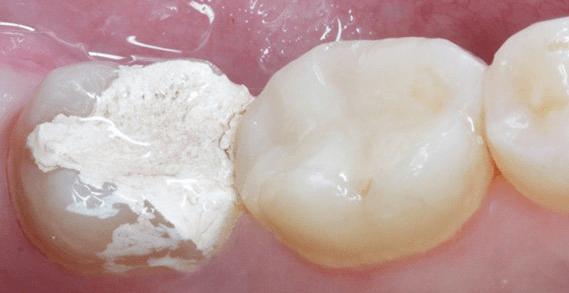 Поставили мышьяк, а зуб болит: что делать при боле