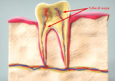 Как удалить нерв в зубе в домашних условиях?