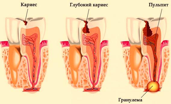 Как лечить гранулему зуба и каковы причины ее появления