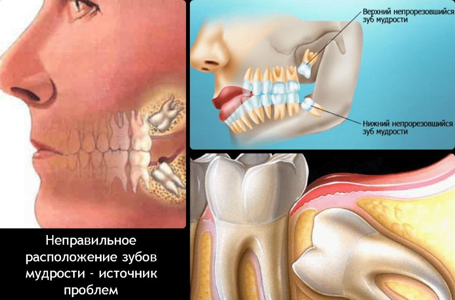 Как снять боль, если при росте зуба мудрости он болит
