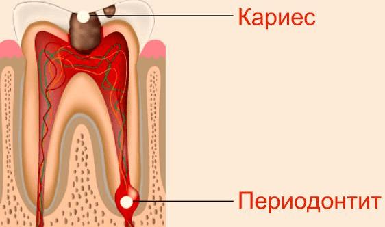 Как лечить хронический периодонтит и каковы симптомы