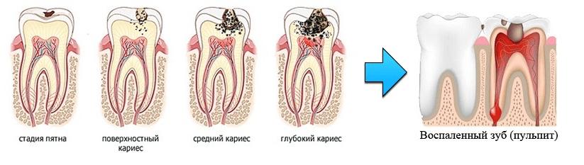 От чего может болеть зуб под пломбой и как избавиться от боли
