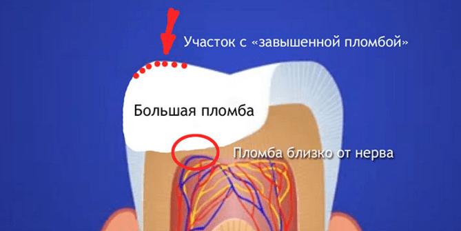Почему болит зуб при надавливании после пломбирования: причины