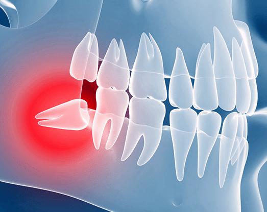 Что делать, если болит десна при росте зуба мудрости