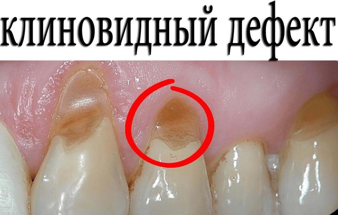По каким причинам возникает клиновидный дефект зубов и как их лечить