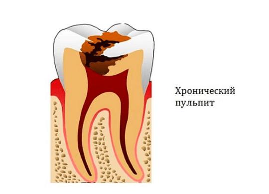 Как лечить хронический пульпит временных и постоянных зубов